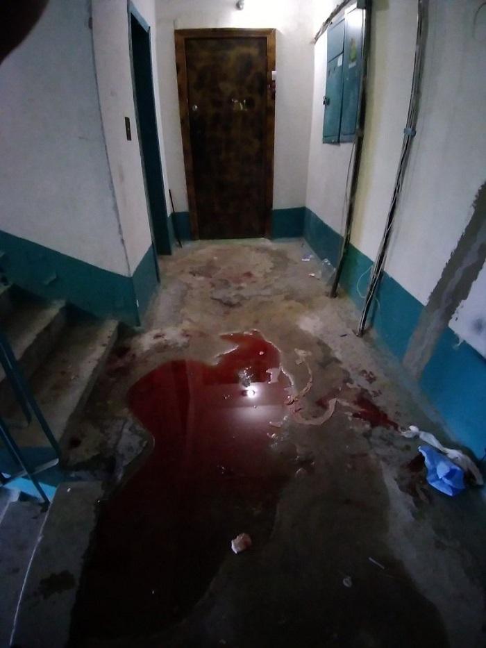 «Истекая кровью, стучал в квартиры». Соцсети: В Луганске раненый просил вызвать «скорую»